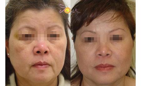 Ưu đãi 75% giải pháp căng da mặt 1 lần duy nhất không phẫu thuật - 4