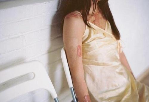 Từ chối hẹn hò, cô gái TQ bị bạn trai tưới xăng đốt - 4