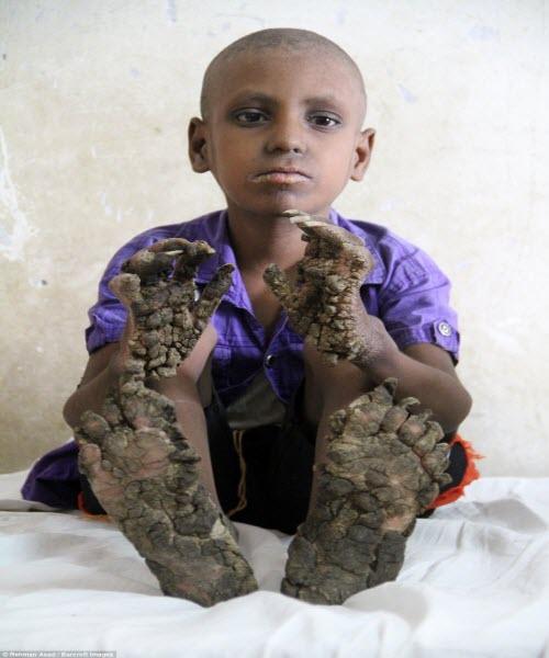 Cậu bé có bàn tay như rễ cây ở Bangladesh - 1