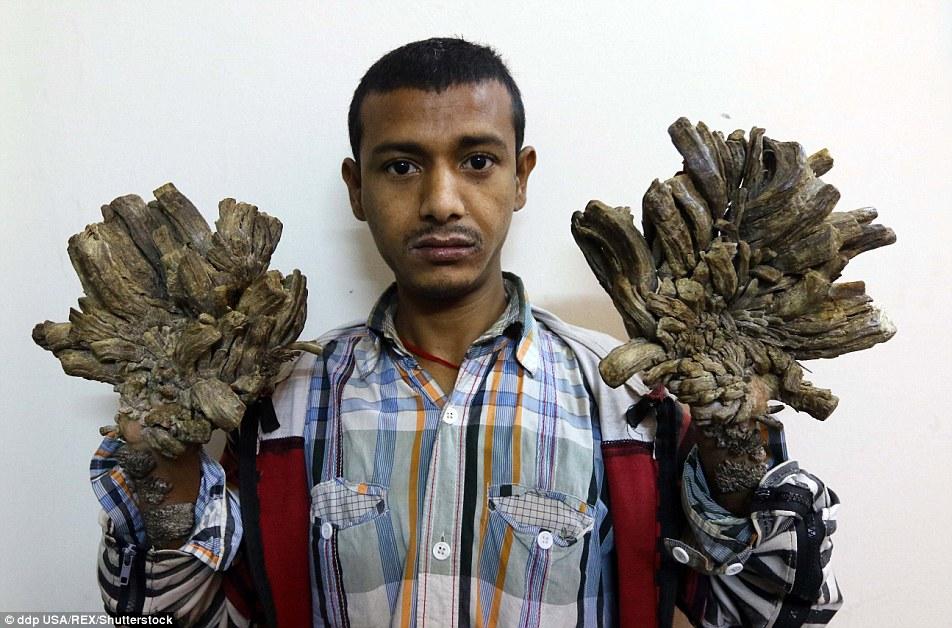 Cậu bé có bàn tay như rễ cây ở Bangladesh - 2