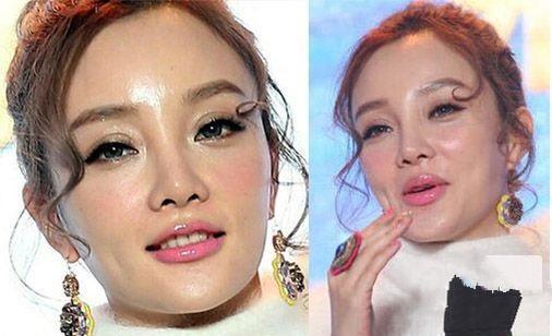 """9 """"ngọc nữ"""" Hoa – Hàn tự làm xấu mình vì thẩm mỹ quá đà - 1"""
