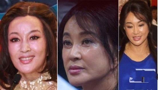 """9 """"ngọc nữ"""" Hoa – Hàn tự làm xấu mình vì thẩm mỹ quá đà - 2"""