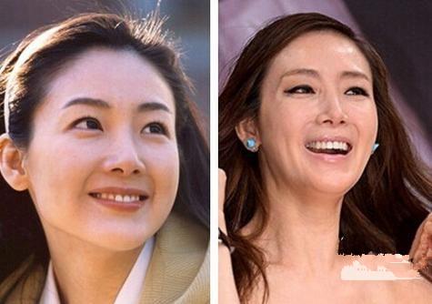"""9 """"ngọc nữ"""" Hoa – Hàn tự làm xấu mình vì thẩm mỹ quá đà - 8"""