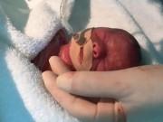 """TQ: Cặp song sinh bé """"bằng lòng bàn tay"""" chào đời"""