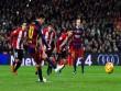 TRỰC TIẾP Bilbao – Barca: Làm sao cản Messi – Suarez