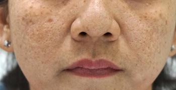 Điều trị nám bằng laser: Cẩn thận rước họa vào thân - 1