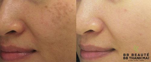Điều trị nám bằng laser: Cẩn thận rước họa vào thân - 4