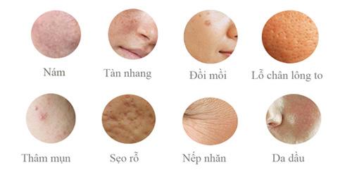 Điều trị nám bằng laser: Cẩn thận rước họa vào thân - 5