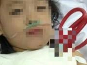 Sức khỏe đời sống - Cấp cứu kịp thời bé gái bị kéo đâm xuyên ngực