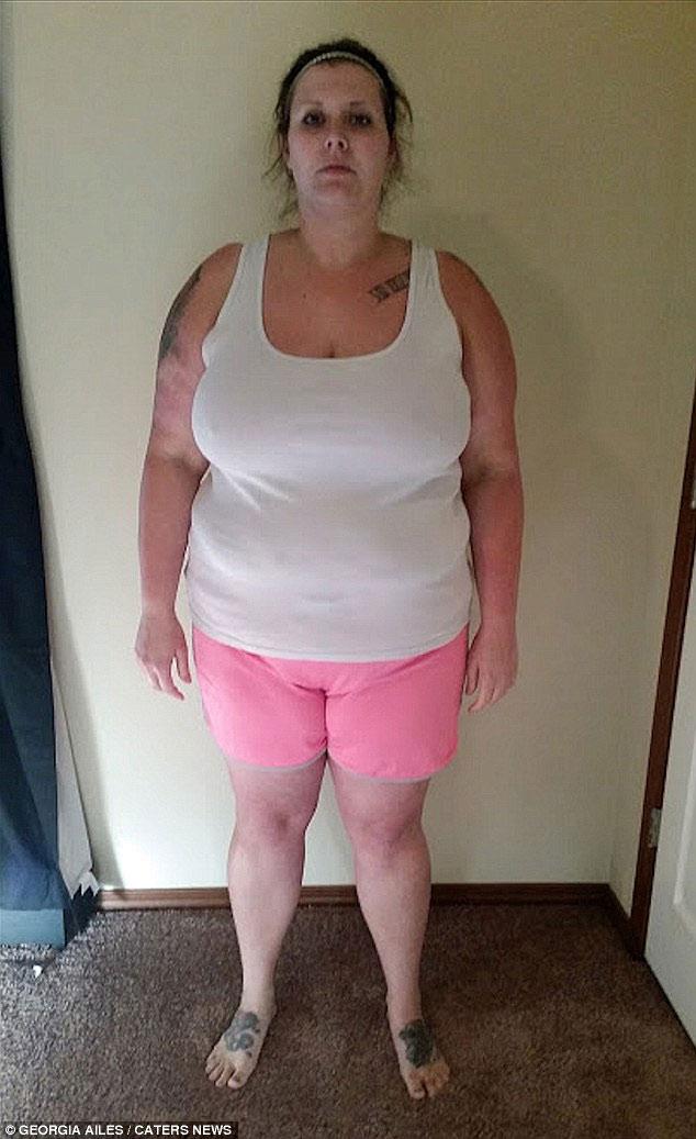 Choáng với da thừa hậu giảm cân của người đẹp Mỹ - 1
