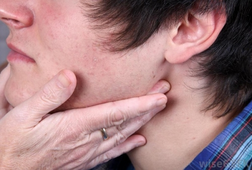 Dấu hiệu nhận biết sớm ung thư vòm họng - 4