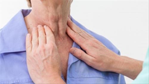Dấu hiệu nhận biết sớm ung thư vòm họng - 5