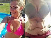 Làm đẹp - Choáng với da thừa hậu giảm cân của người đẹp Mỹ