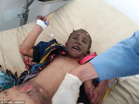 Chấn động hình ảnh em bé napalm Syria bỏng nặng - 2