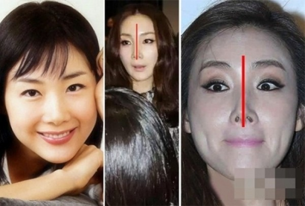 Những đại mỹ nhân một thời biến dạng vì mũi kì dị - 6