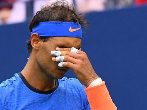Thua sốc, Nadal không biết lý do từ đâu - 1