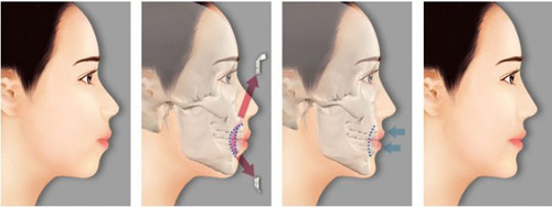 Hàng ngàn ca phẫu thuật hô móm hai hàm thành công tại JW - 1
