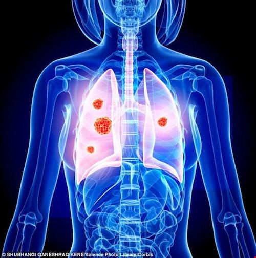 Ung thư sẽ đến nhanh hơn với thuốc lá điện tử - 1