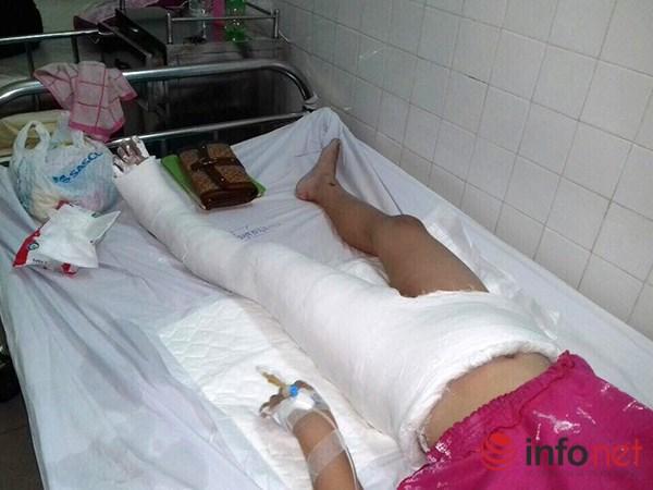 Cháu bé bị lệch xương đùi sau khi bó bột - 1