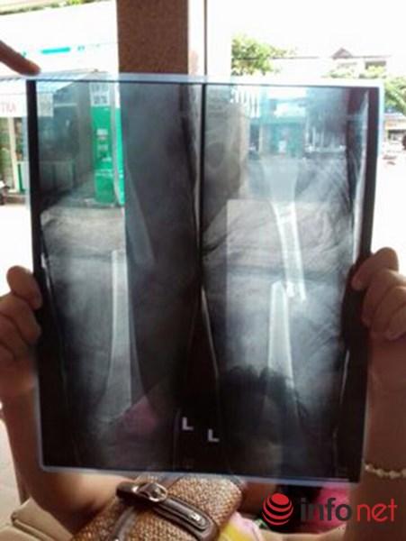 Cháu bé bị lệch xương đùi sau khi bó bột - 2