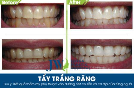 Niềng răng toàn diện – Giải pháp làm đẹp 2016 - 3
