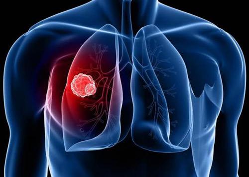 Ung thư phổi: Nguy hiểm cận kề nhưng vẫn có thể sống khoẻ - 1