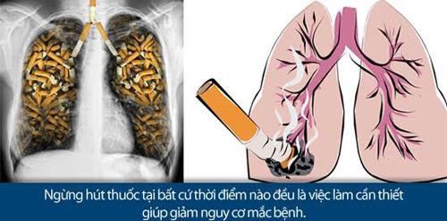Ung thư phổi: Nguy hiểm cận kề nhưng vẫn có thể sống khoẻ - 2