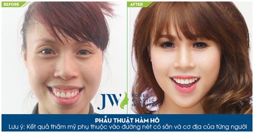 JW- Bệnh viện uy tín về phẫu thuật hô móm 2 hàm tại Việt Nam - 6