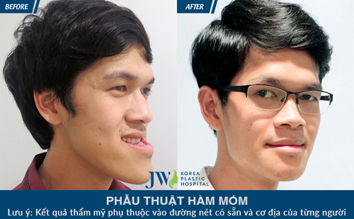 JW- Bệnh viện uy tín về phẫu thuật hô móm 2 hàm tại Việt Nam - 7
