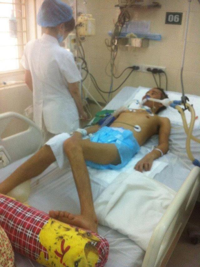 """Chàng trai 25 tuổi mắc căn bệnh kinh dị """"mất dần nội tạng"""" - 2"""