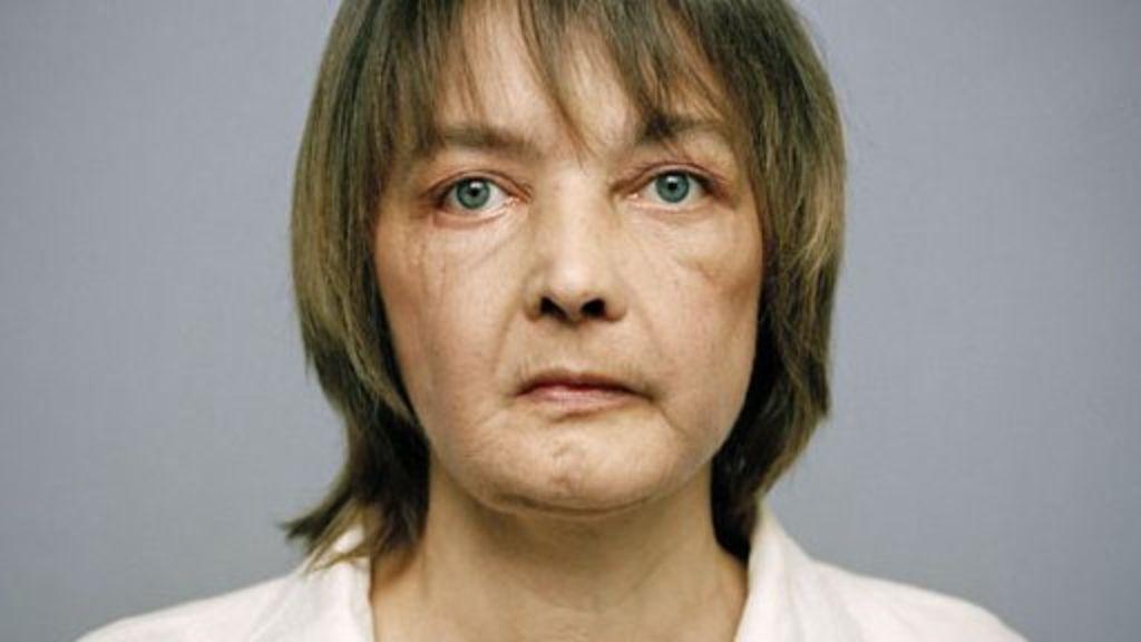 Người ghép mặt đầu tiên trên thế giới qua đời - 1