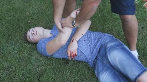 Trai trẻ đứt gân tay vì trò chém hoa quả như game - 4
