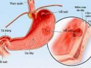 Sức khỏe đời sống - Infographic: 8 món ăn người bị viêm dạ dày cần tránh xa