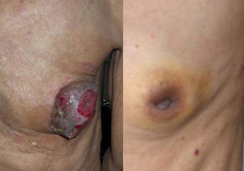 Quái gở những quý ông đột nhiên mắc bệnh phổ biến của phụ nữ - 1