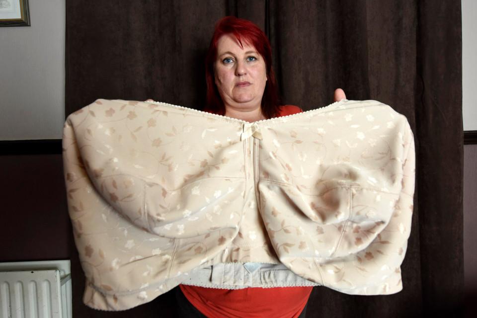 Anh: Suýt chết ở công viên vì ngực siêu khủng nặng 22kg - 3