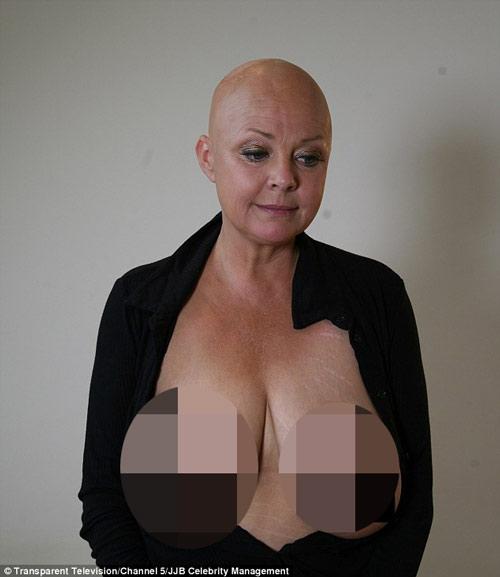 """Sốc với bộ ngực khổng lồ của """"bom sex"""" một thời - 2"""