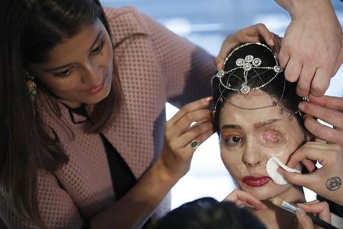 Người mẫu bị tạt axit gây chấn động sàn diễn New York - 3
