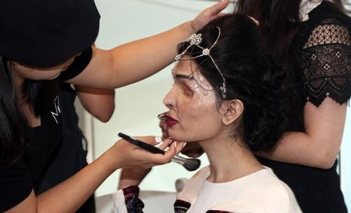 Người mẫu bị tạt axit gây chấn động sàn diễn New York - 4