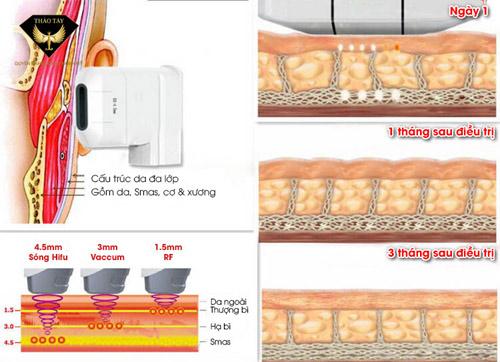 Nâng cơ căng da Hifu Smas Thera an toàn không phẫu thuật - 1