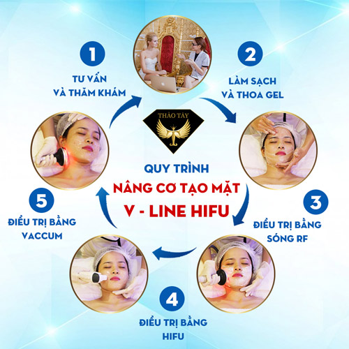 Nâng cơ căng da Hifu Smas Thera an toàn không phẫu thuật - 2