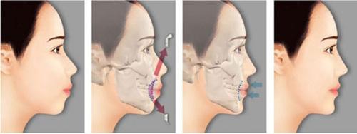 Phẫu thuật hai hàm chỉnh hô móm toàn diện tại JW - 3