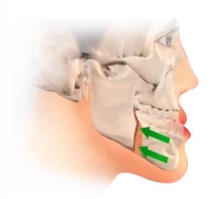 Phẫu thuật hai hàm chỉnh hô móm toàn diện tại JW - 4