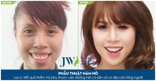 Phẫu thuật hai hàm chỉnh hô móm toàn diện tại JW - 8