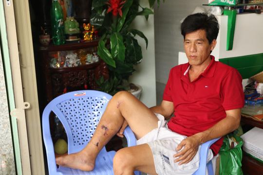 Vụ tai nạn Bảo Lộc: Triệu tập chủ xe khách để điều tra - 2