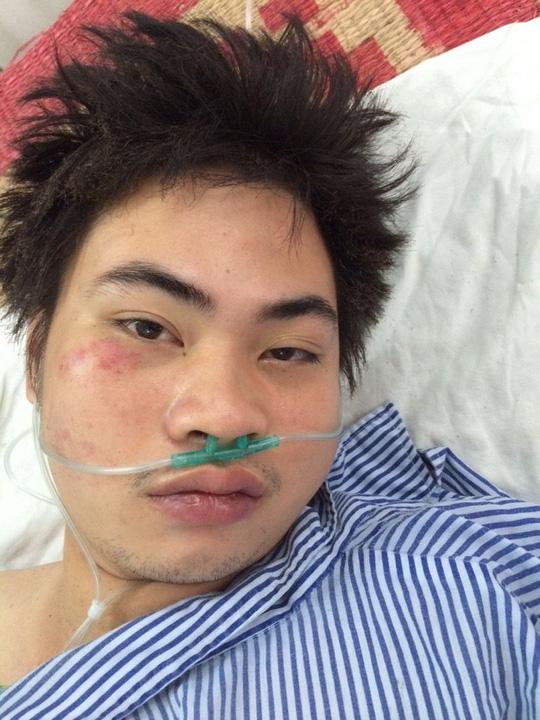 Kẻ ngáo đá ôm bình gas tự sát khiến 4 công an bị thương - 2
