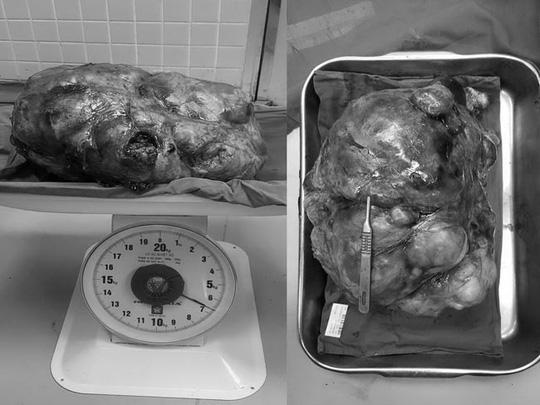 """""""Ngất"""" với khối u bóc ra từ bụng 2 người đàn ông - 2"""