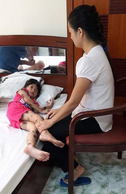 Xót cảnh bé 7 tuổi bị u sắc tố da bẩm sinh khổng lồ - 1