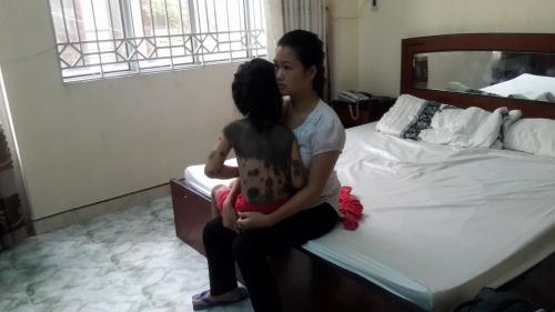 Xót cảnh bé 7 tuổi bị u sắc tố da bẩm sinh khổng lồ - 2