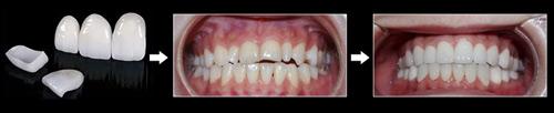 Sở hữu nụ cười đẹp với răng sứ thẩm mỹ công nghệ mới 2016 - 2