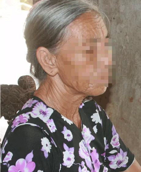"""Nỗi đau không lời của cô bé """"da trâu"""" bị mẹ cha ruồng bỏ - 2"""